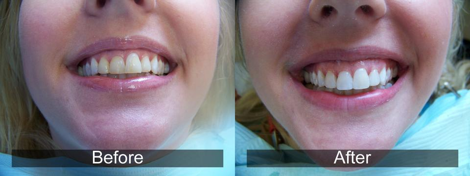 Dental Results 13