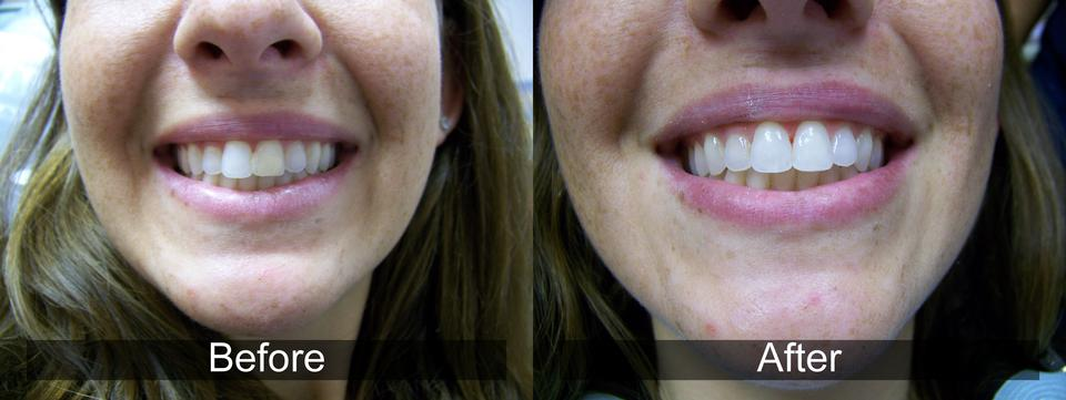 Dental Results 2