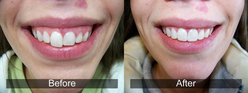 Dental Results 4